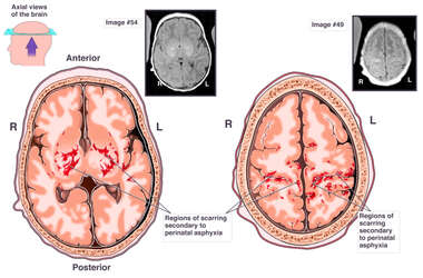 Radiological Evidence of Brain Injury from Perinatal Asphyxia