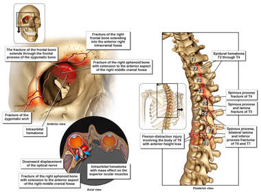 Orbital and Spinal Fractures