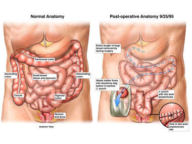 Search: complete colectomy with ileostomy