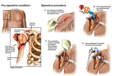 Right Shoulder Fractures with Initial Surgical Repairs