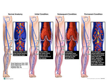 Progression of Deep Vein Thrombosis (DVT) with Development of Post-thrombotic Syndrome (PTS)