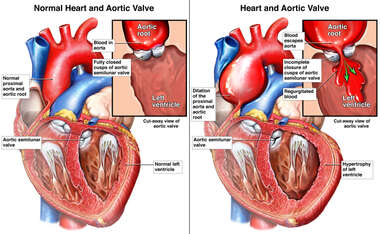 Incomplete Closure of Aortic Semilunar Valve