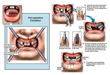 Traumatic Oral Injuries with Progressive Surgical Repairs