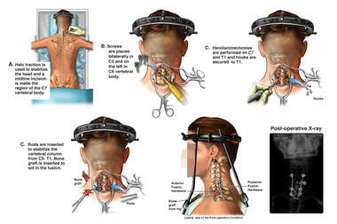 Stabilization of the Cervical Spine with Multilevel Posterior Fusion
