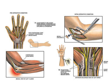 Post-accident Elbow and Wrist Nerve Injuries with Surgical Repairs