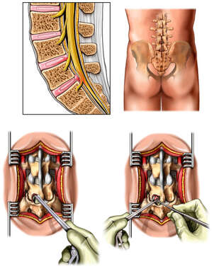 L4-5 and L5-S1 Disc Injuries with Laminectomy and Discectomy Procedure