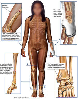 Female Figure with Post-operative Condition of the Right Thigh, Lower Leg, Left Wrist and Ankle