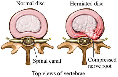 Lumbar Paracentral Right Sided Herniated Disc