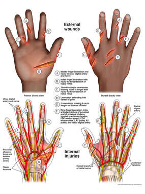 Right Hand Defense Wounds