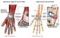 Injury to the Ligaments and Fibrocartilage of the Wrist