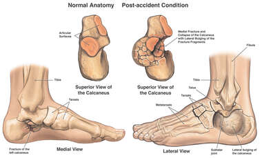 Displaced Comminuted Left Calcaneus Fracture