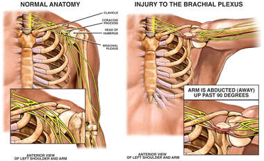 Prolonged Abduction of the Shoulder with Brachial Plexus Injury