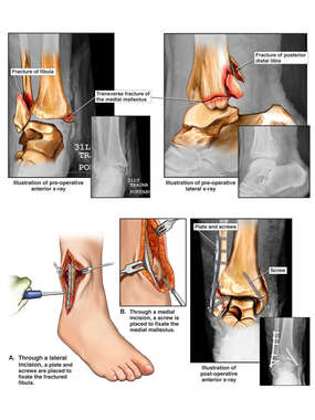 Right Trimalleolar Ankle Fracture with Surgical Fixation