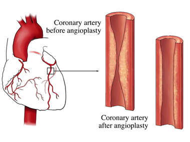 Angioplasty - Before and After