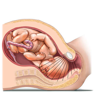 Vaginal Delivery - Fetus at  2 Station (5 Point Scale)