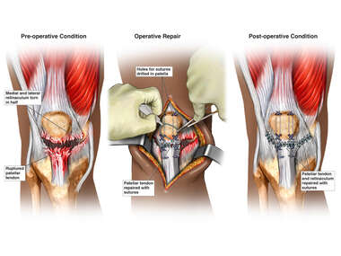 Right Knee Injuries and Surgical Repair