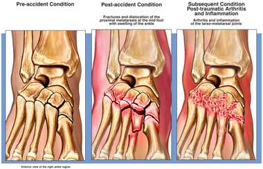 Metatarsal Fractures with Eventual Arthritis