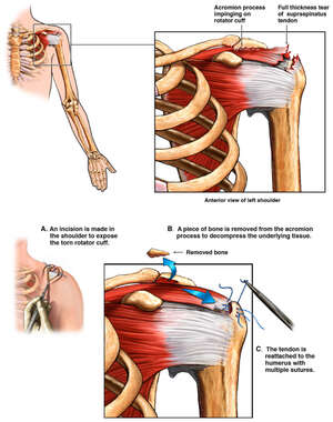Left Rotator Cuff Tear and Surgical Repair