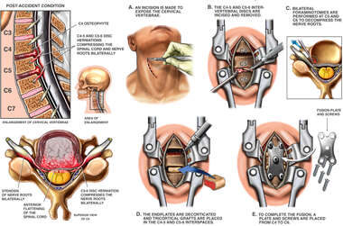 C4-C5 and C5-C6 Anterior Cervical Discectomy and Fusion