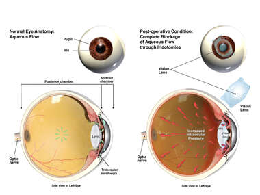 Placement of Intraocular Lens with Blockage of Fluid Flow Within the Eye