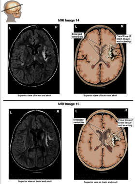 Focal Loss Of Brain Tissue And Scarring