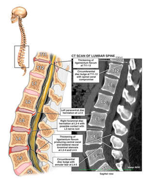 Post-accident Thoraco-Lumbar Spinal Disc Injuries T11-12, L2-3, L3-4, and L4-5