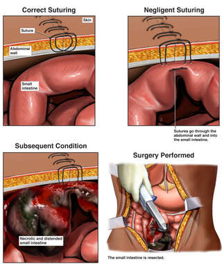 Abdominal Incision Closure with Incorporation of Small Bowel Segment