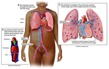 Mechanism of Fatal Pulmonary Embolism