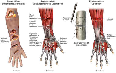 Lacerations to the Right Forearm and Wrist with Surgical Repairs