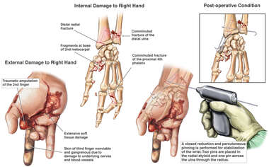 Post-accident Crush Injuries of the Right Hand and Wrist with Percutaneous Fixation of the Wrist