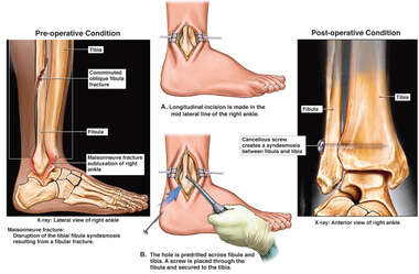 Right Fibula Fracture and Surgical Fixation