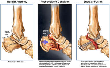 Left Foot Fractures, Post-traumatic Arthritis and Eventual Surgical Fusion