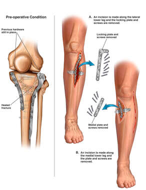 Surgical Removal of Tibial Fixation Hardware