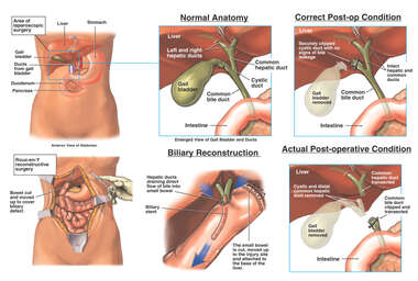 Laparoscopic Cholecystectomy Procedure with Subsequent Bile Duct Injury