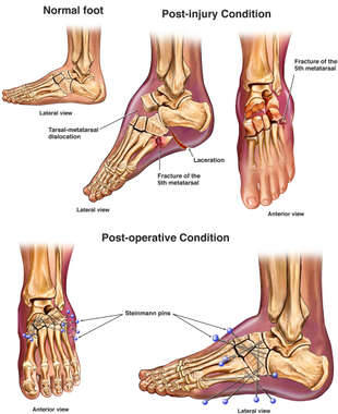 Left Foot Crush Injuries with Initial Surgical Fixation