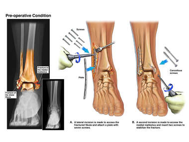 Right Ankle Fractures with Open Reduction and Internal Fixation
