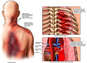 Fatal Chest Injuries