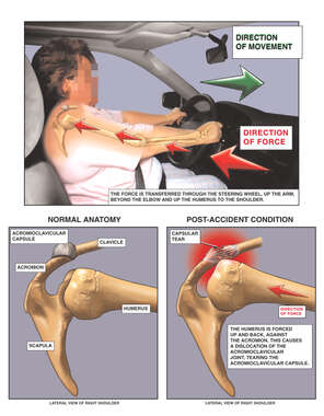 Mechanism of Shoulder Injury in Automobile Collision