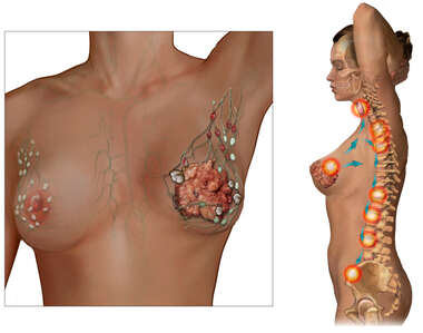 Left Breast Cancer with Metastasis