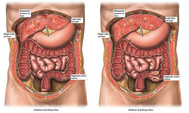 Progression of Abdominal Tumors