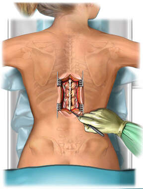 Thoracic Incision