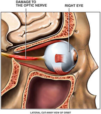 Post-accident Injury to the Right Eye Optic Nerve