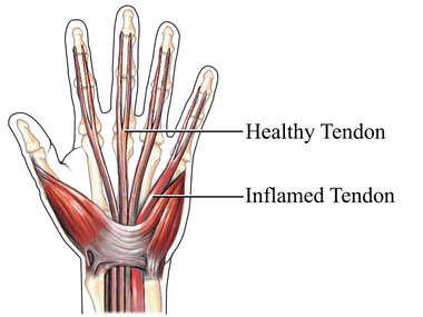 Tendonitis of the Hand