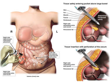Abdominal Trocar Placement with Perforation of the Cecum