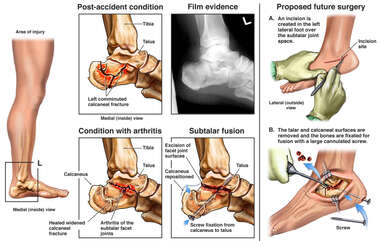 Left Foot Fracture with Subsequent Arthritis and Proposed Future Subtalar Fusion