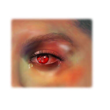 Opthamalogical Injury( Black Eye with Internal Hemorrhage)