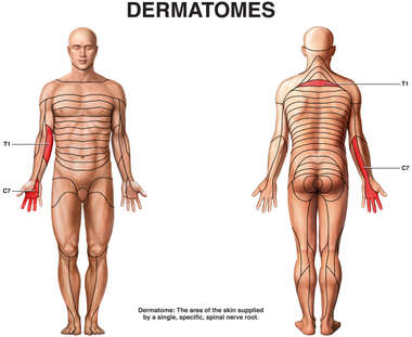 T1 and C7 Dermatomes