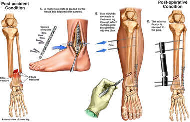 Left Leg Injuries with External Fixation