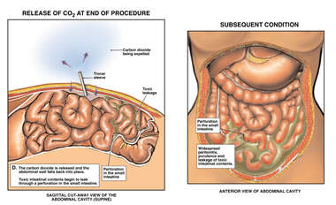 Laparoscopic Perforation of the Small Intestine with Peritonitis and Purulence