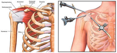 Arthroscopic Entrance Points for Shoulder Repair